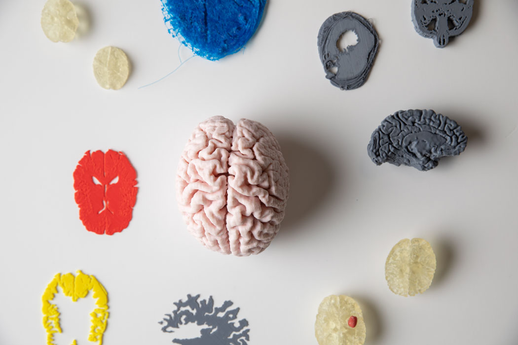 3d printed brains